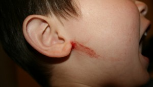 Eczema child